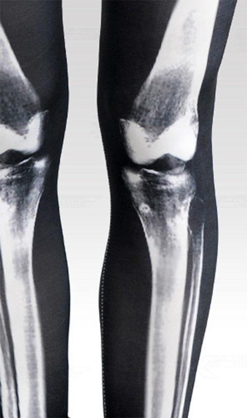 Legíny rentgen efekt
